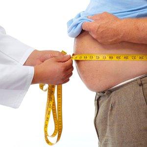 Ожиріння  doctortap.com.ua
