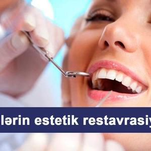 Dişlərin estetik restavrasiyası  hekimtap.az
