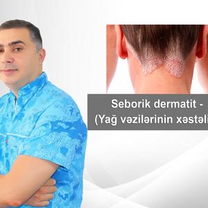 Seborik dermatit - (Yağ vəzilərinin xəstəliyi)