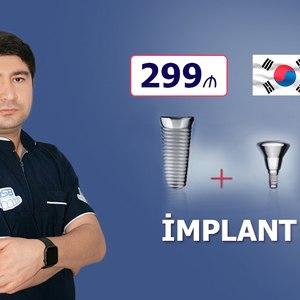 Implant dişlər cəmi 299 hekimtap.az