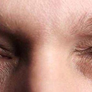 göz səyirməsinin səbəbləri