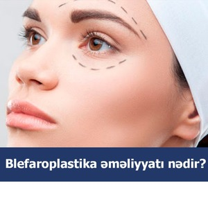 Blefaroplastika əməliyyatı nədir?  hekimtap.az