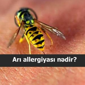 Arı allergiyası nədir?