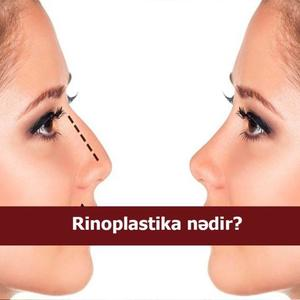 Rinoplastika nədir?
